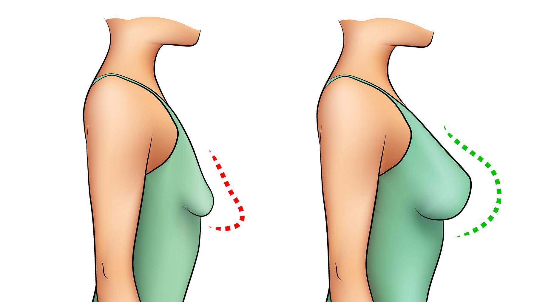 Come aumentare il seno senza chirurgia?